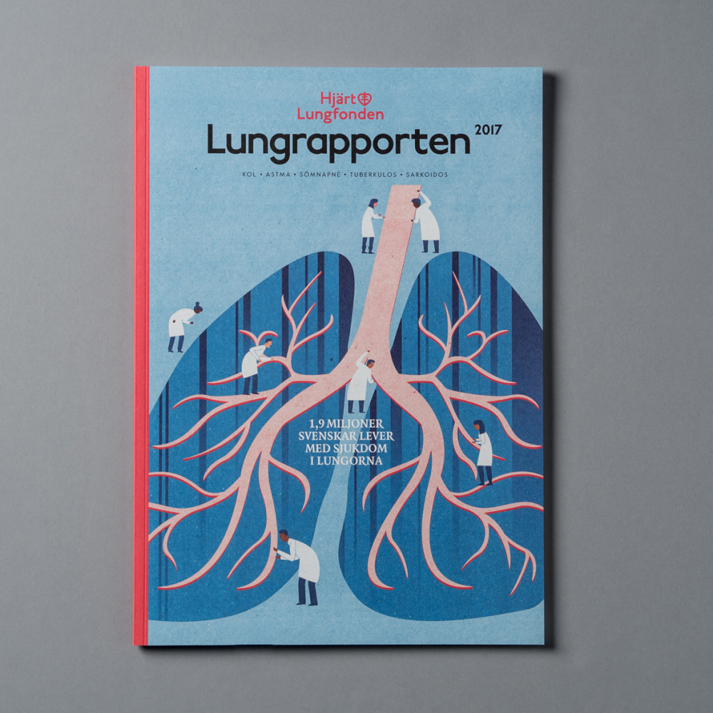 Lungrapporten